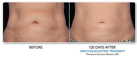 CoolSculpting - Before and After